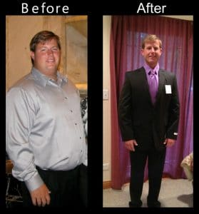beforeafter-951x1024